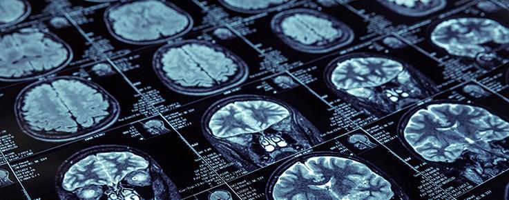 Delaware Traumatic Brain Injury Lawyer